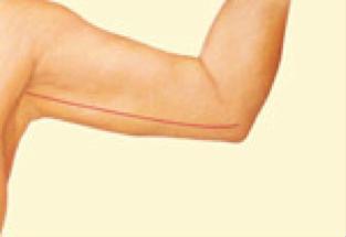 arm lift2