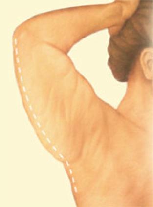 arm lift4