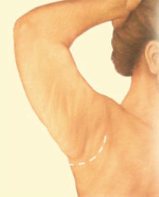 arm lift6