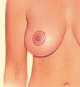 breast-lift2