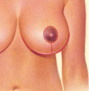 breast-reduc2