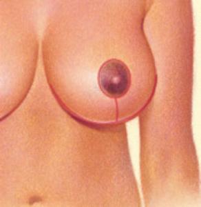 breast-reduc4
