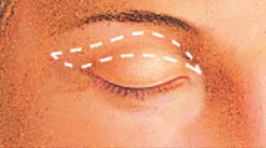 eyelid-procedure2