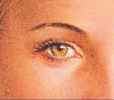 eyelid-procedure3