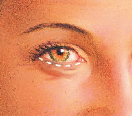 eyelid-procedure4