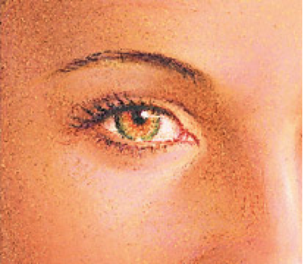 eyelid-procedure5
