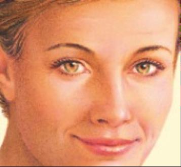eyelid-procedure6