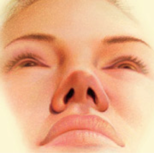 nose surgery4