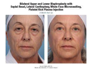 bilatblepharoplasty-fattransmicroneedling-wfm